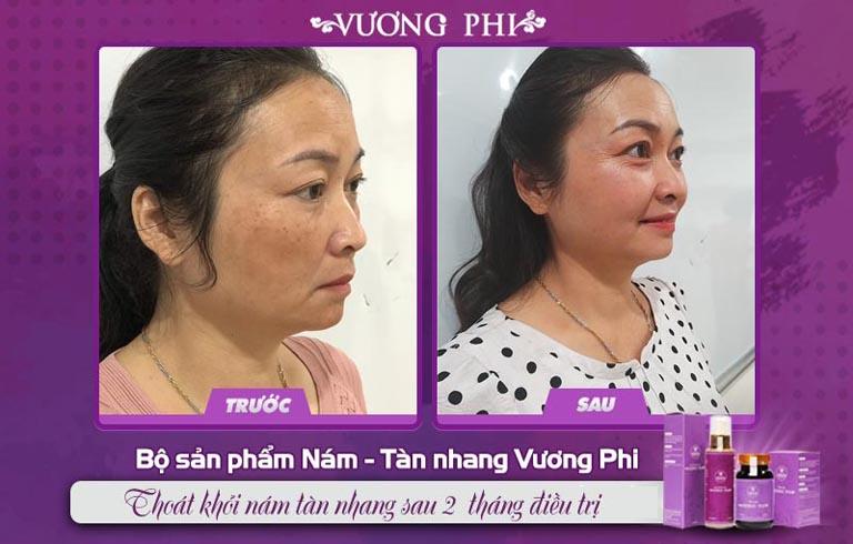 Cựu nữ quân nhân Tạ Thị Vân, 47 tuổi giảm hơn 80% nám, tàn nhang sau 2 tháng