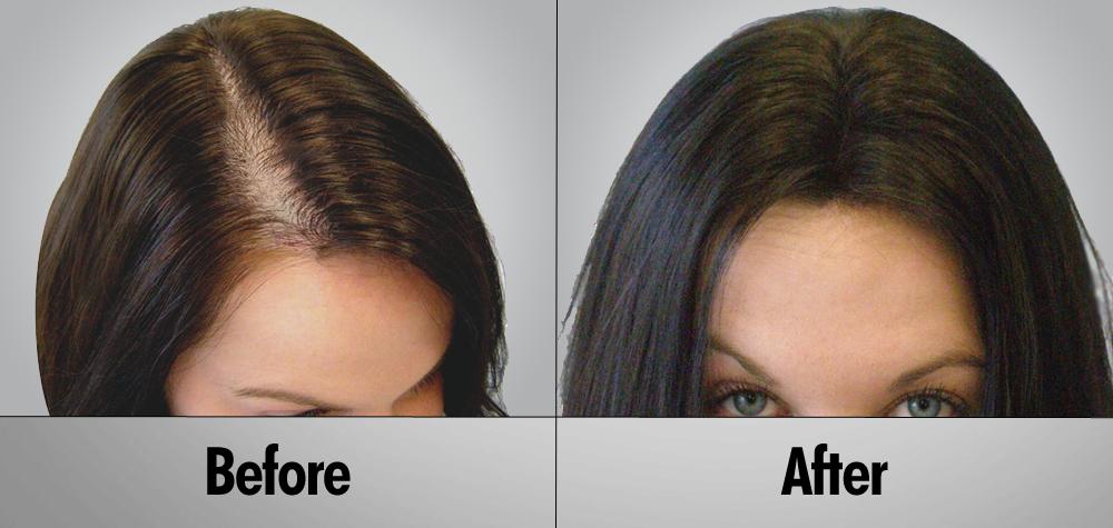 Bổ huyết tiêu giao thang chặn đứng tình trạng rụng tóc và kích thích tóc mọc trở lại dày dặn chỉ sau 2 tháng