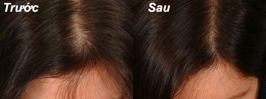 Hình ảnh trước và sau khi sử dụng Bổ huyết tiêu giao thang của chị Thương