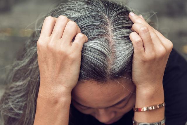 Hiện tượng tóc bạc sớm có thể ảnh hưởng đến nhiều người trẻ tuổi