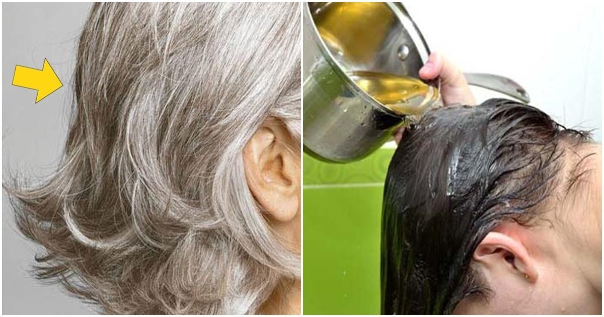 Bài thuốc trị rụng tóc của Trung tâm Da liễu Đông y Việt Nam dùng bao lâu thì hiệu quả?
