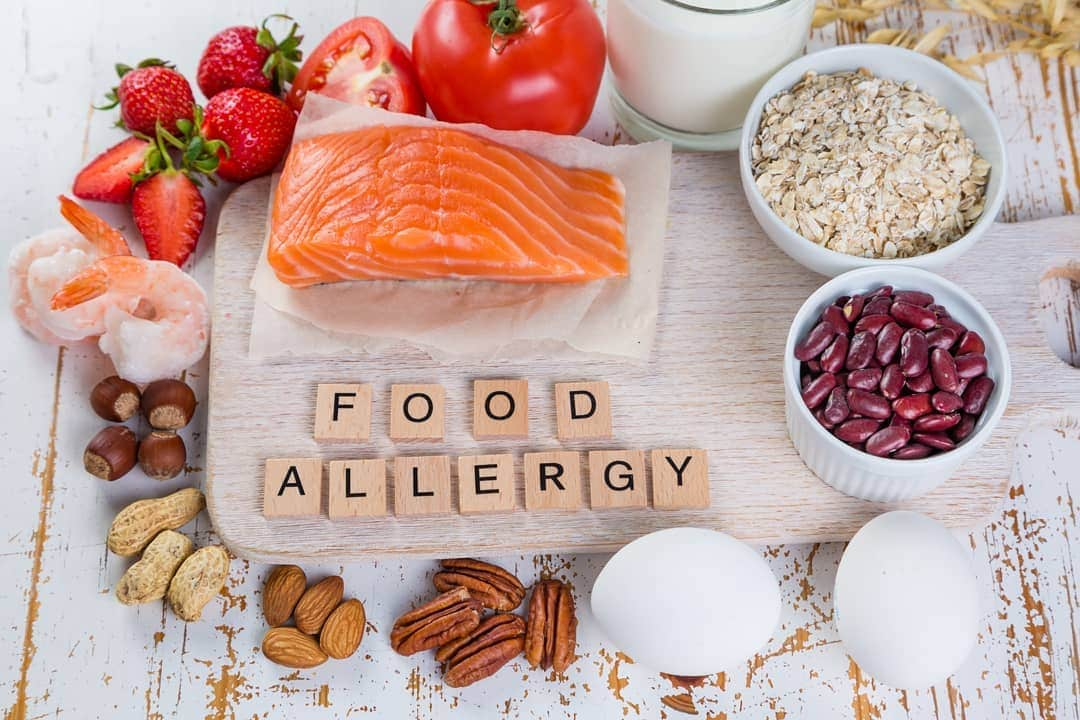 Bị nổi mề đay nên kiêng các thực phẩm gây dị ứng