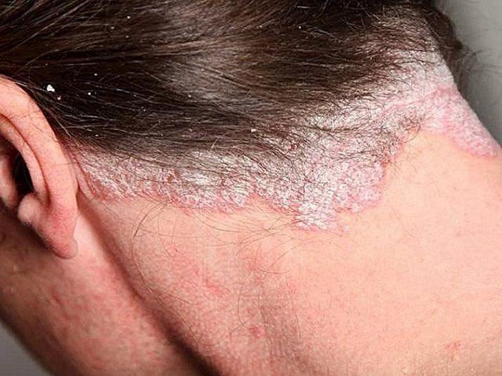 Hình ảnh bệnh vảy nến da đầu