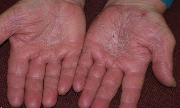 Bệnh á sừng ở bàn tay
