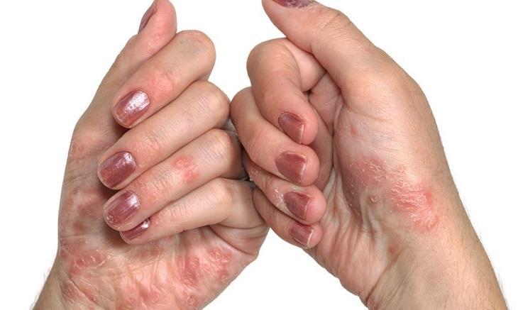 Bệnh vảy nến ở tay
