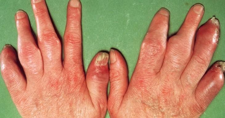 Hình ảnh bệnh vẩy nến thể khớp