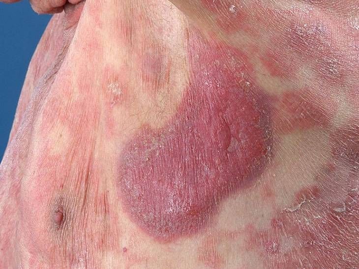 Hình ảnh bệnh vẩy nến thể loang lổ
