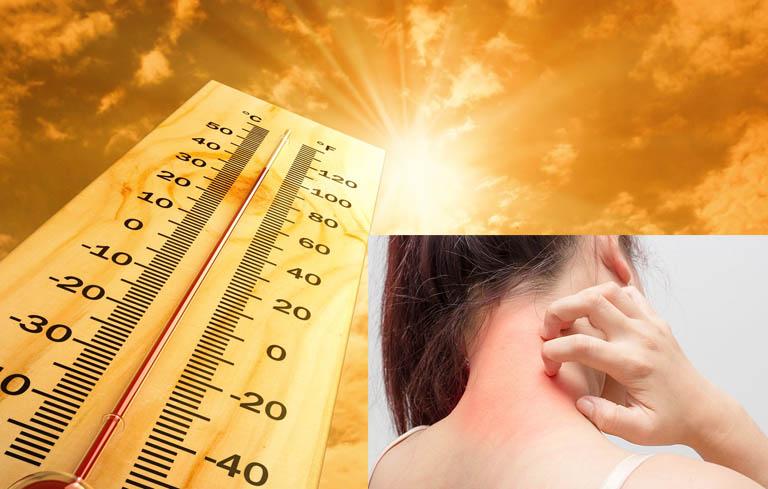 Dị ứng mề đay vào mùa hè cảnh báo nhiều vấn đề cơ thể