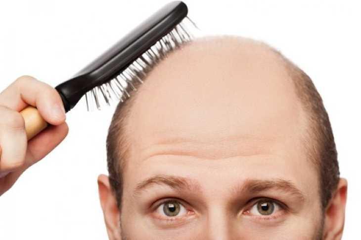 Việc dùng quan lộc nhung quá liều có thể gây tình trạng hói đầu