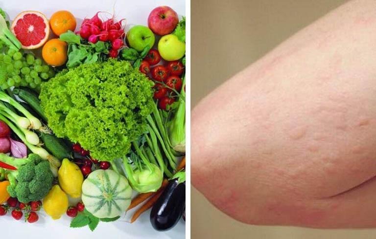 Nên có chế độ ăn uống khoa học để bệnh nhanh thuyên giảm