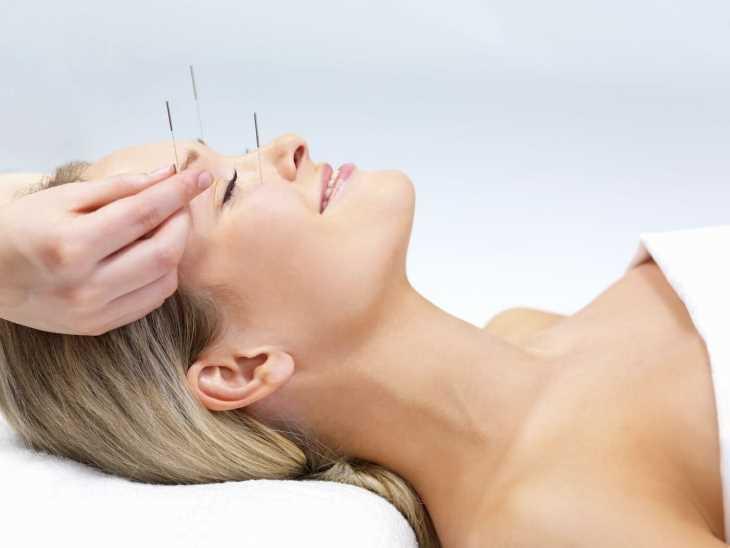 Để điều trị mất ngủ y học cổ truyền thường kết hợp cả thuốc uống và châm cứu