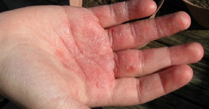 Hình ảnh bệnh á sừng ở bàn tay