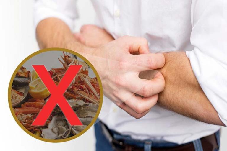 Người bệnh nên kiêng thực phẩm dễ gây kích ứng da