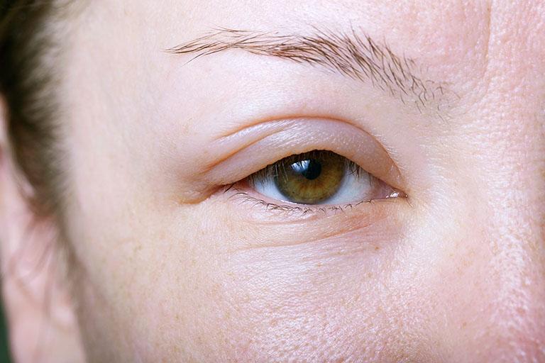 Nổi mẩn đỏ quanh mắt có thể gây sưng phù xung quanh mắt