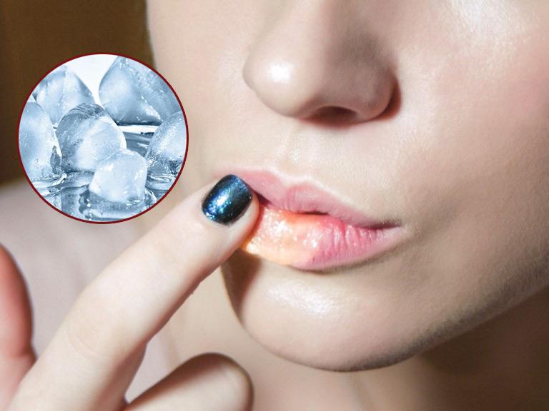 Chườm đá lạnh có thể tạm thời giảm sưng đau môi