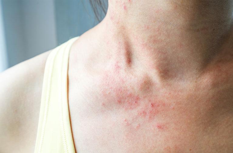 Vùng da bị tổn thương có thể cảnh báo viêm da dị ứng