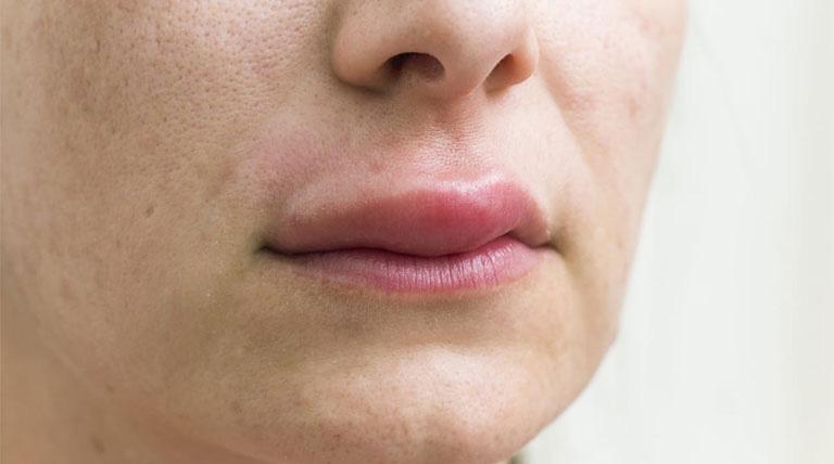 Hiện tượng nổi mề đay sưng môi khiến người bệnh khó giao tiếp và sinh hoạt bình thường
