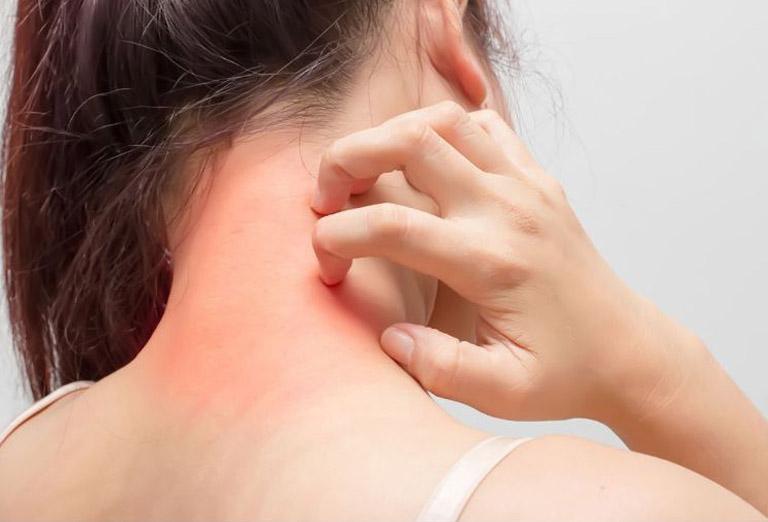 Mề đay cholinergic gây ra tình trạng ngứa ngáy khó chịu cho người bệnh