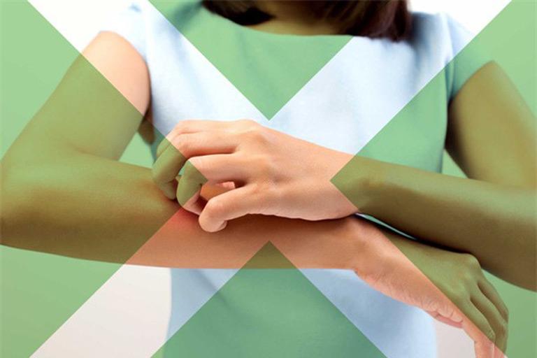 Người bệnh không nên gãi để giảm tình trạng ngứa ngáy, châm chích da