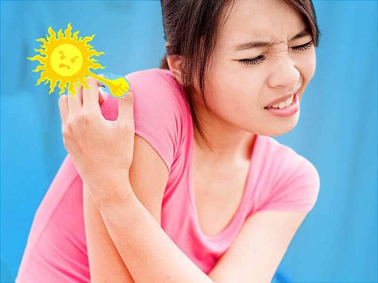Thời tiết quá oi bức khiến da bị bí bách gây mẩn ngứa khó chịu
