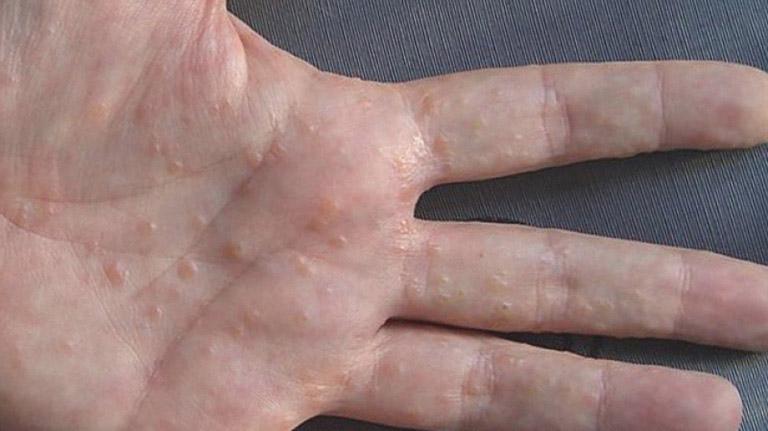 Bị nổi nốt đỏ ngứa ở tay là biểu hiện của chàm tổ đỉa