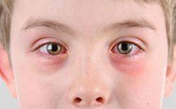 Bị nổi mẩn đỏ quanh mắt: Tìm hiểu nguyên nhân, điều trị dứt điểm