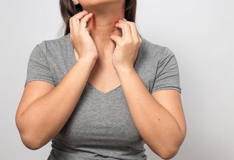 Ngứa ngáy liên tục làm giảm chất lượng cuộc sống