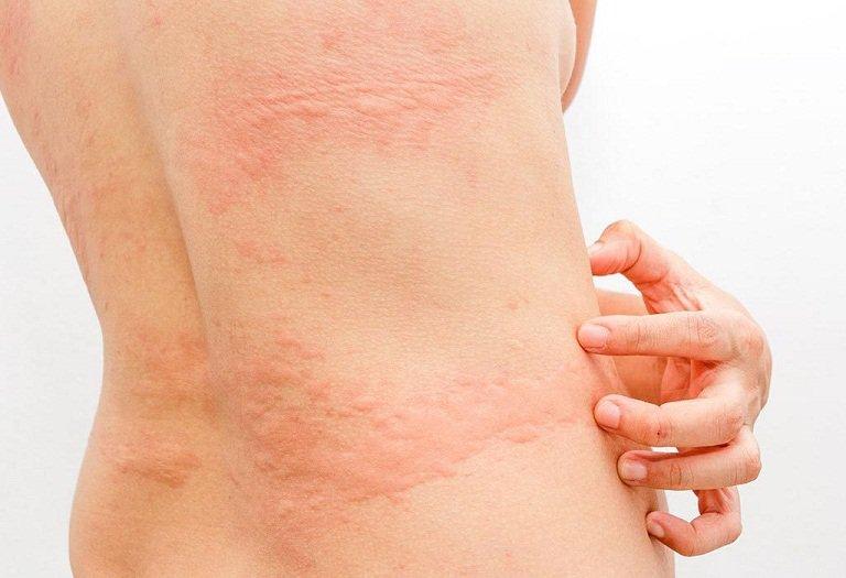 Nổi mề đay gây ra tình trạng nổi mẩn đỏ ở bụng, lưng