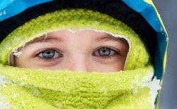 Nổi mề đay khi trời lạnh