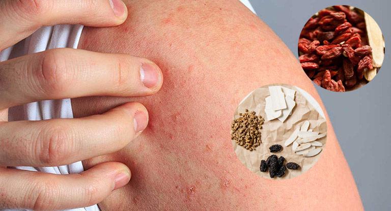 Đông y chú trọng điều trị mề đay từ gốc, ngăn tái phát