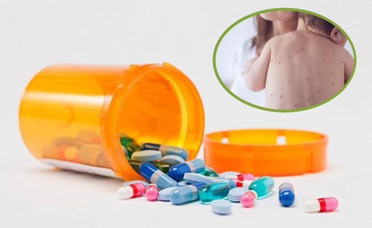 Thuốc kháng histamine H2 hỗ trợ điều trị bệnh mề đay cho bé nhanh chóng