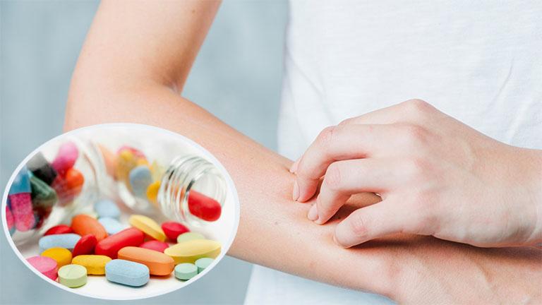 Thuốc Tây ý giúp cải thiện tình trạng nổi mề đay, mẩn ngứa nhanh chóng