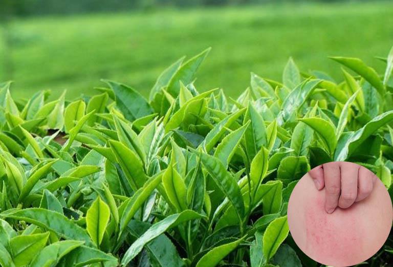 Trà xanh có thể được sử dụng để chữa dị ứng nổi mề đay toàn thân ngay tại nhà
