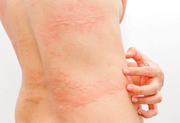 Triệu chứng cơ bản của mề đay là nổi mẩn đỏ thành vùng