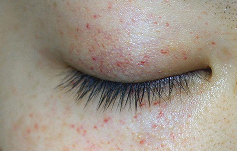 Các biểu hiện nổi mẩn đỏ xung quanh mắt