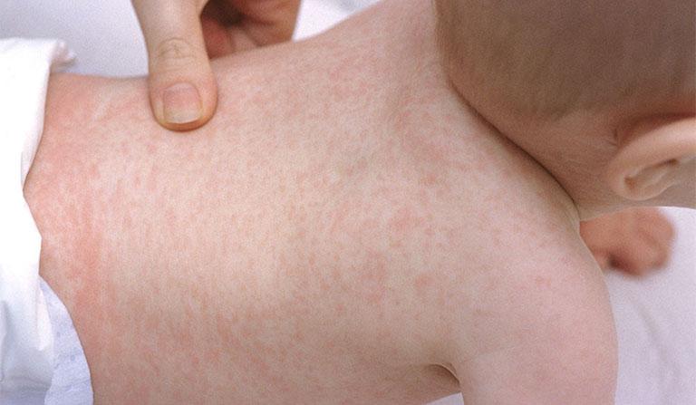 Bé nổi mẩn đỏ khắp người sau sốt do cơ thể còn yếu, hệ miễn dịch chưa hoàn thiện