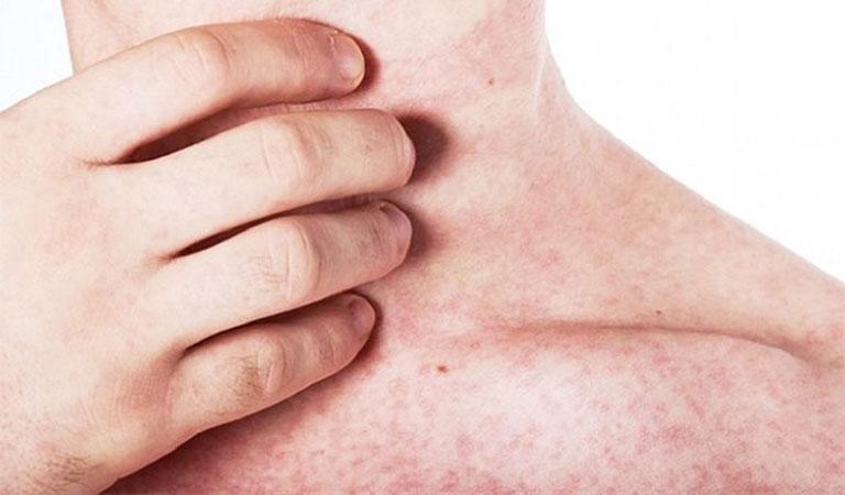 Bệnh ghẻ nếu không điều trị kịp thời có thể gây lở loét, tổn thương da nghiêm trọng