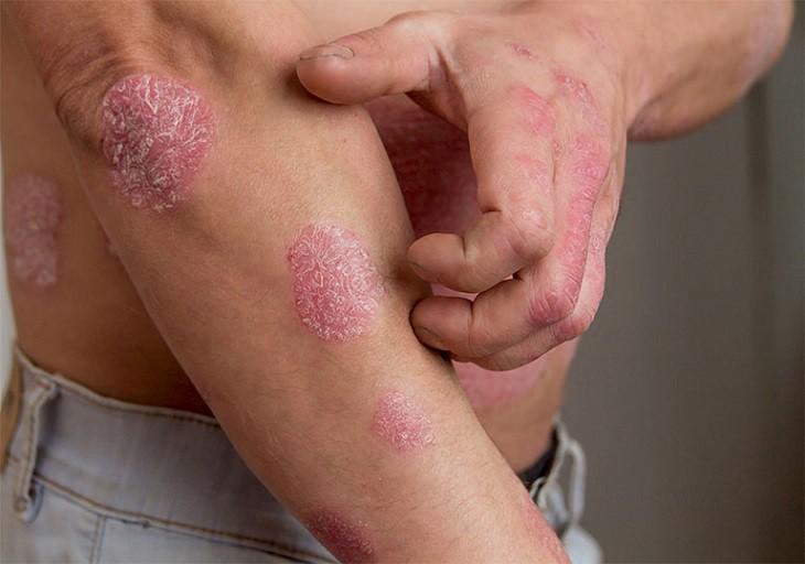 Rối loạn hệ miễn dịch là một trong số nguyên nhân dẫn đến bệnh vảy nến
