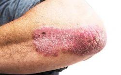 Bệnh vảy nến rất thường gặp và có thể xuất hiện ở bất cứ ai