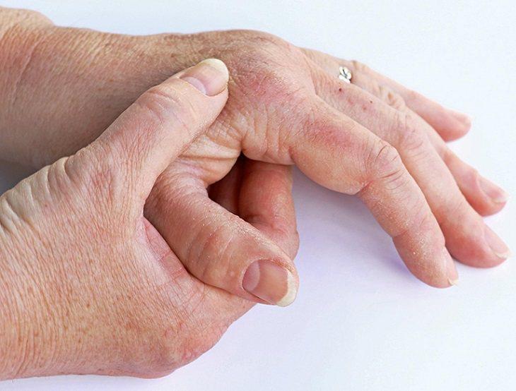 Bệnh có thể gây biến chứng viêm khớp, ảnh hưởng đến hệ xương khớp