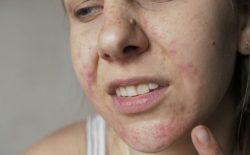 Da mặt khô ngứa mẩn đỏ do đâu? Bật mí cách chữa hiệu quả, ngăn tái phát