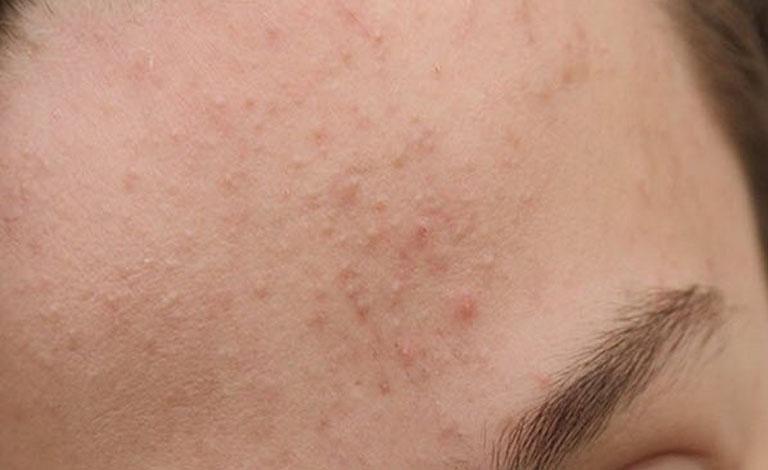 Bị nấm gây hại tấn công có thể dẫn tới nổi mẩn ngứa
