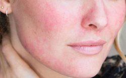Mặt nổi mẩn đỏ không ngứa: Điều trị đúng cách, tránh biến chứng về sau