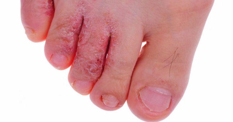 Nấm da chân là bệnh truyền nhiễm thường gặp do nấm gây ra