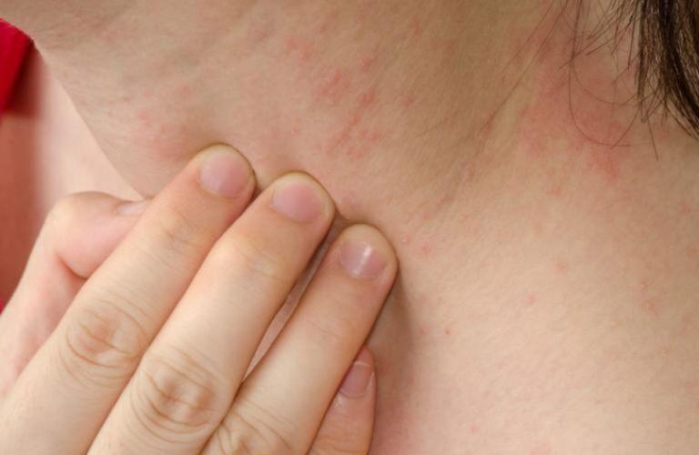 Có nhiều nguyên nhân dẫn đến tình trạng nổi mẩn ngứa ở cổ