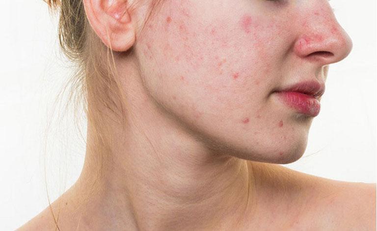 Nổi mẩn đỏ không ngứa là dấu hiệu cảnh bảo bị viêm da tiết bã nhờn