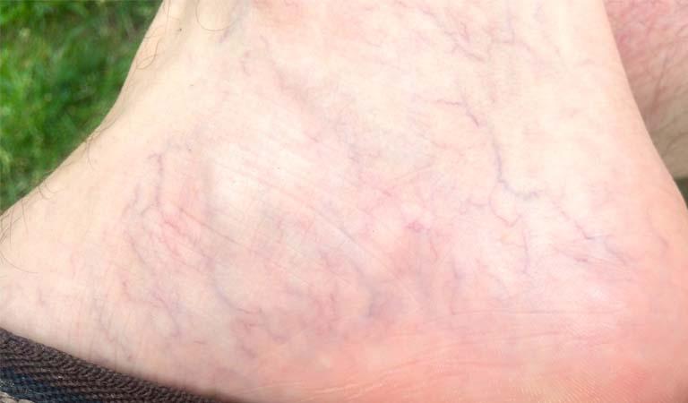 Nổi mẩn đỏ ở chân không ngứa cảnh báo bị giãn mao mạch