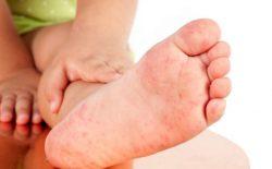 Nổi mẩn ngứa ở chân cảnh báo bệnh lý gì? Cách trị dứt điểm, ngăn tái phát