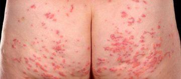 Nổi mẩn ngứa ở mông cảnh báo bệnh gì? Cách chữa trị hiệu quả dứt điểm