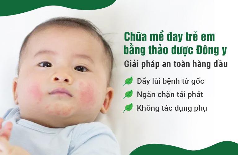 Đông y là giải pháp an toàn, hiệu quả để điều trị mề đay trẻ em